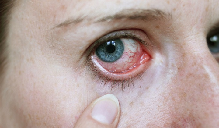 Alimentos evitam herpes zoster nos olhos.