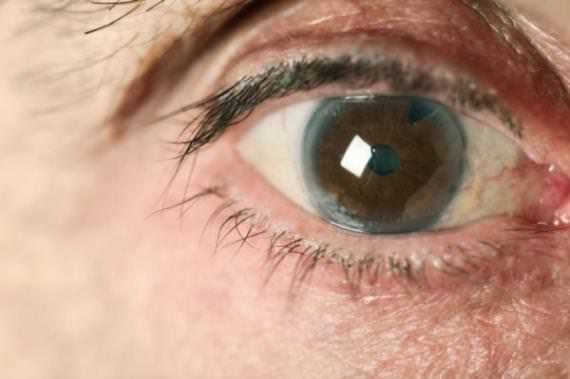 Risco de glaucoma cai 20% com alimentação adequada