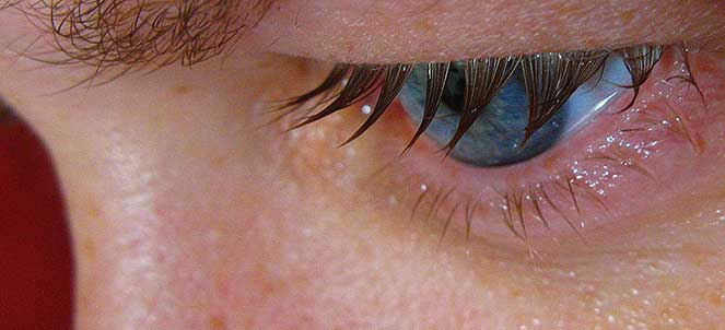 O que fazer quando os olhos lacrimejam sem parar?