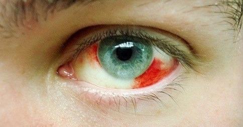 Infarto ocular: assim como cérebro e coração, bloqueios no fluxo sanguíneo podem afetar os olhos.