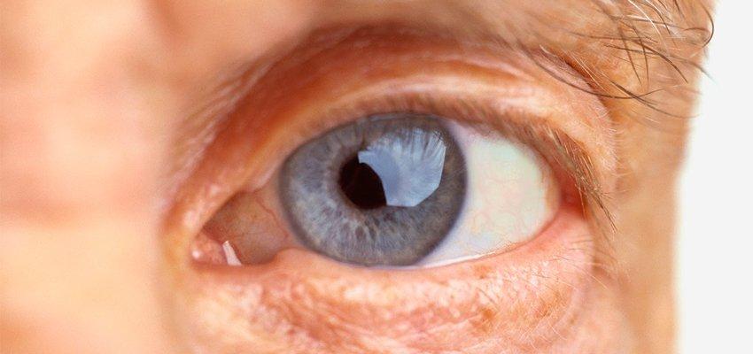 Especialista esclarece dúvidas sobre a degeneração macular relacionada à idade.