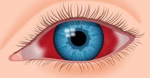 Você sabe o que causa o derrame intraocular e quais são os sintomas?