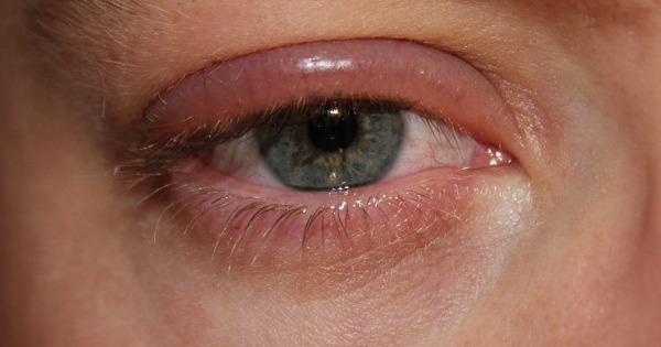 Olhos inchados: entenda o que esse sintoma pode significar